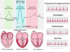 Этапы диагностики инфаркта миокарда